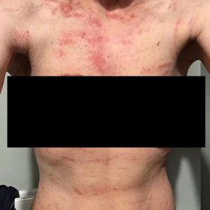 How cryotherapy has changed the lives of Topical steroid withdrawal
